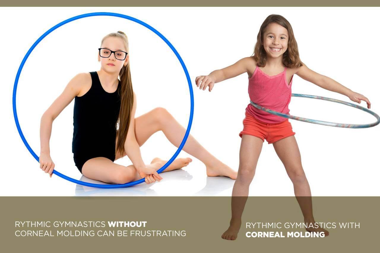 corneal molding gymnastics