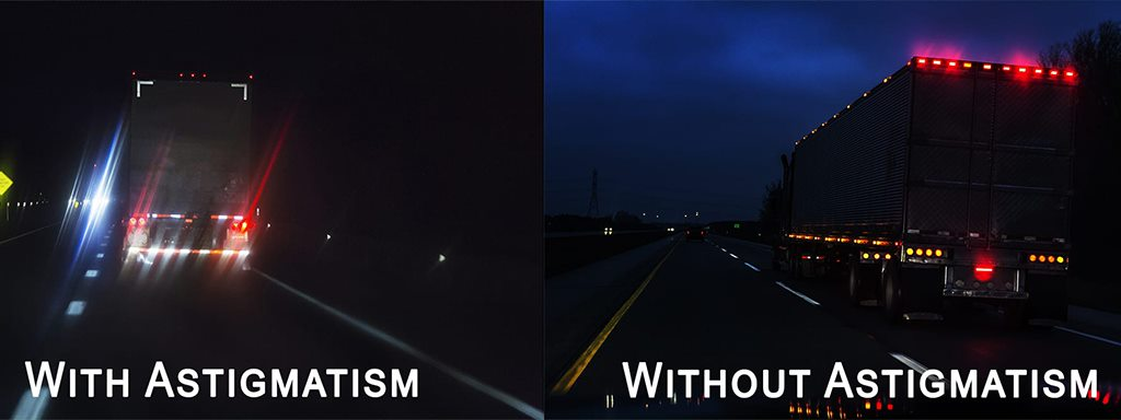 asigmatism