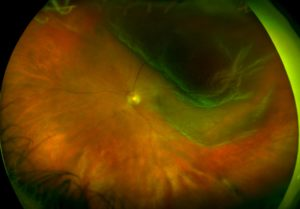 California Retinal DetachmentRetinalHolesTearsDetachments3