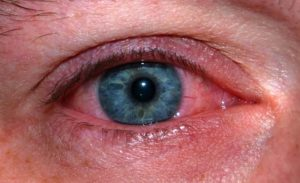 UV Keratitis
