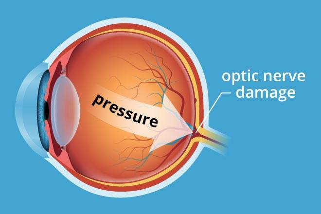 glaucoma pressure 330×220@2x (1)