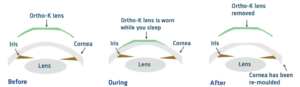ortho k effects1