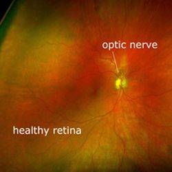 filak Optos Healthy Eye Large rs