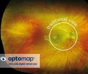 filak optomap scan rs