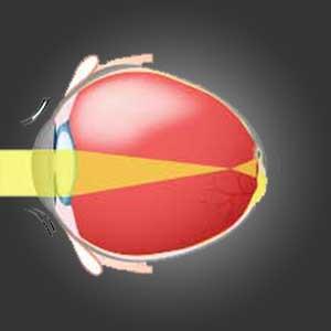 myopia gallery