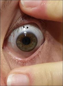 220px Scleral lens worn on an eye