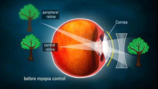 progressive myopia treatment