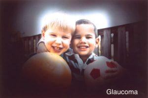 glaucoma treatment 300×199