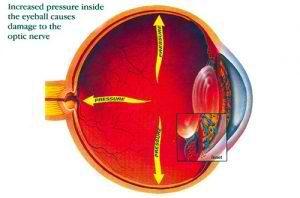 glaucoma 300×198