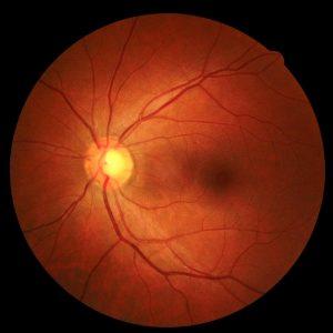 retinal image 2