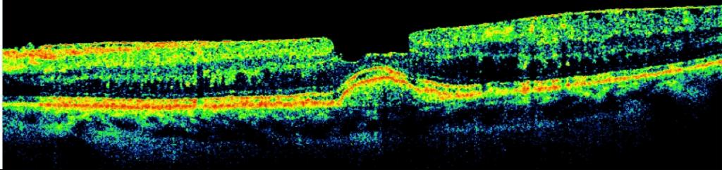 Diseased Retina iWellness 1 1024×241