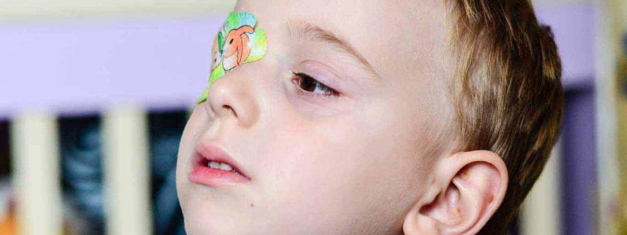 DR 63123162 amblyopia