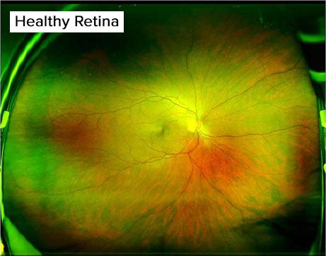 Services healthy retina