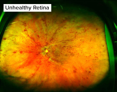 Services unhealthy retina