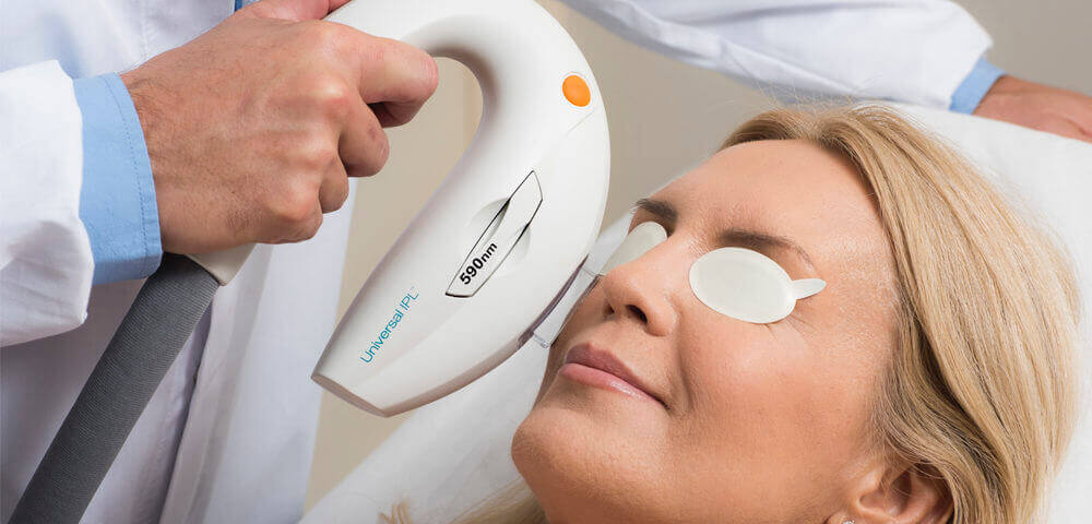 Lumenis Optima IPL