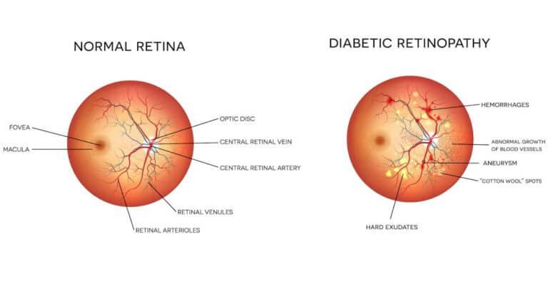 diabetic retinopathy vector