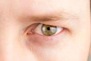 man droopy eyelid
