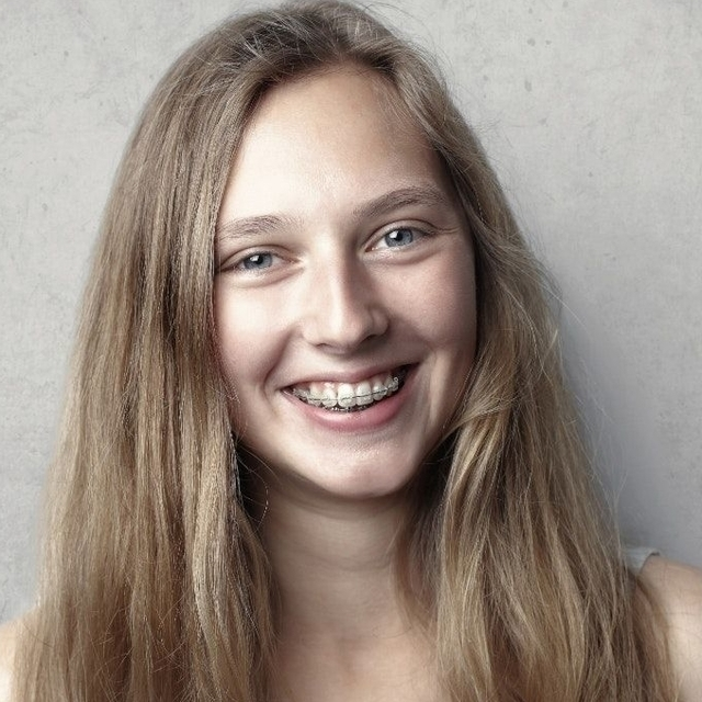 caucasian girl smiling after LASIK surgery