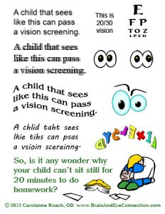 what can pass a vision screening 232×300