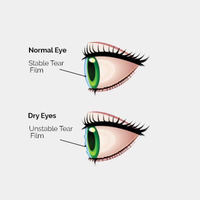 dry eye diagram 2a.jpg