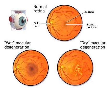 Macular Degeneration MD