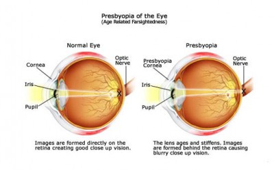 Presbyopia 400×249