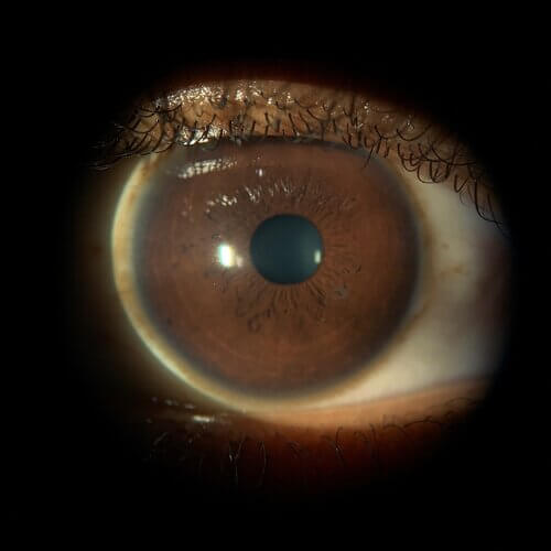 Keratoconus patient sees clearly 3