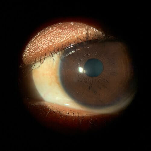 Keratoconus patient sees clearly 4