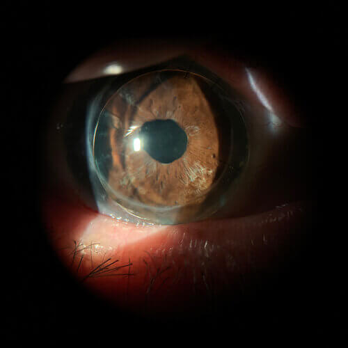 corneal+gp+lens+on+patient+with+PKP+and+glaucoma