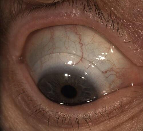 monovision scleral lenses 3