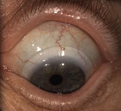 monovision scleral lenses 4