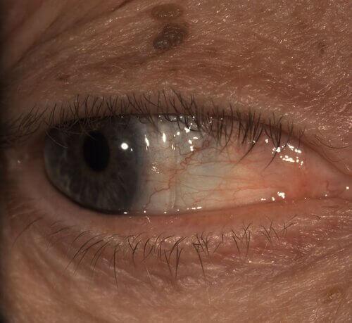 monovision scleral lenses 5