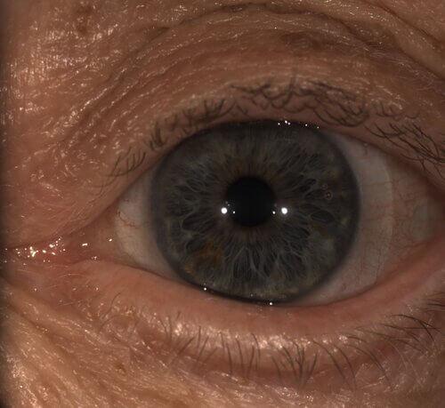 monovision scleral lenses 6