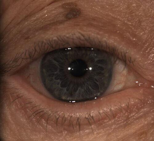 monovision scleral lenses 7
