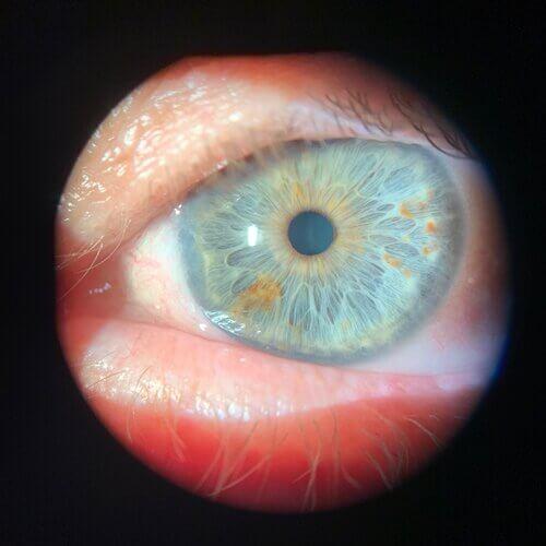 monovision scleral lenses