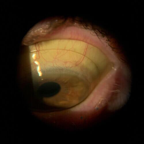 scleral+lens+on+eye+superior