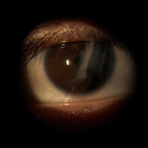 Cornea+trauma+OD.+and+corneal+scar+jpg