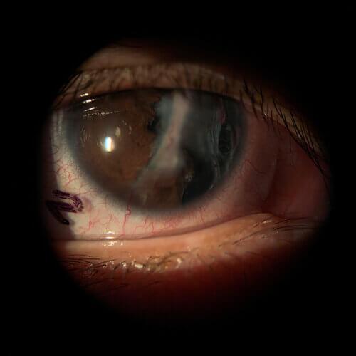 corneal+scar+patient+with+diagnostic+europa+lens