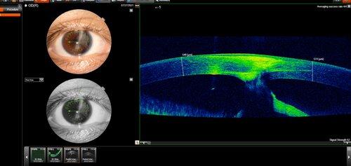 oct+showing+adherence+of+cornea+to+iris