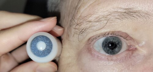 prosthetic+contact+lens+orion