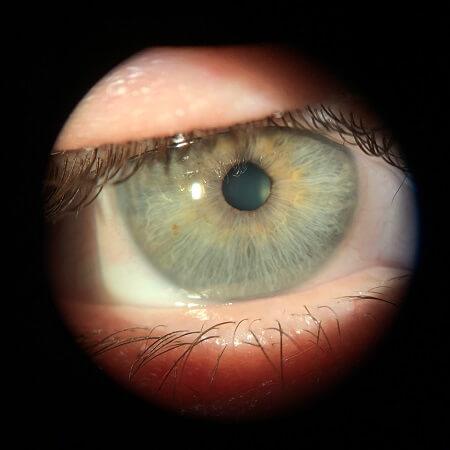 OD cornea