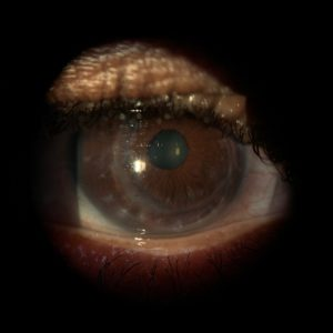 OD corneal transplant