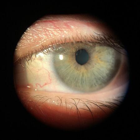 OS cornea