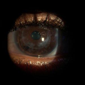 OS corneal transplant