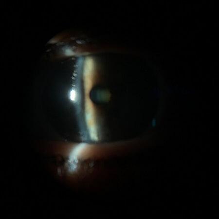 cataract OS