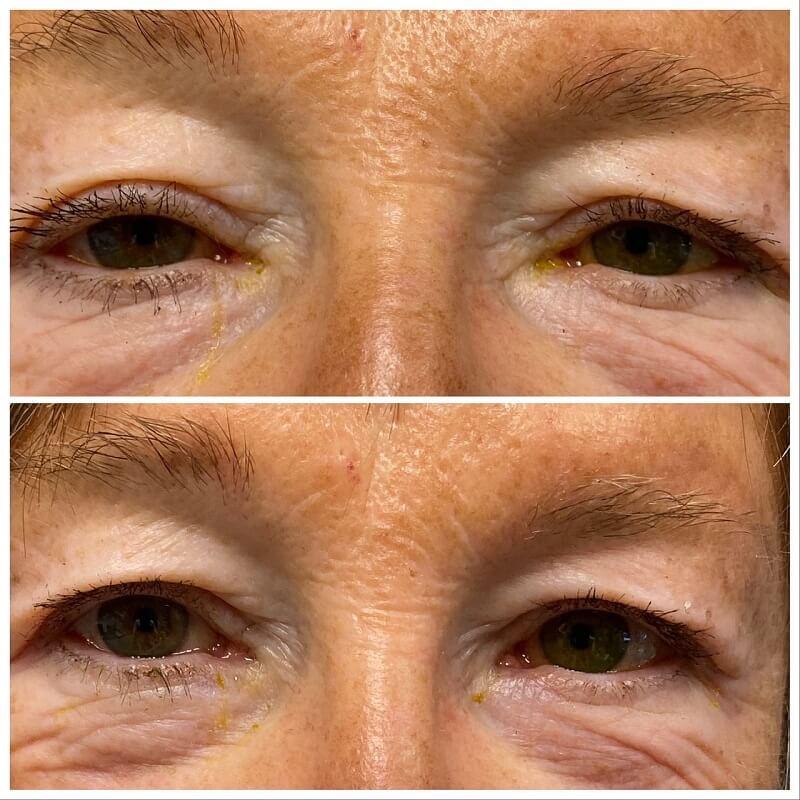 senior eyelids after and before upneeq
