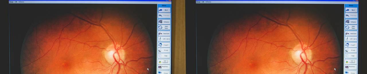 retina-views