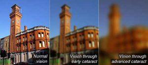 vision through cataract