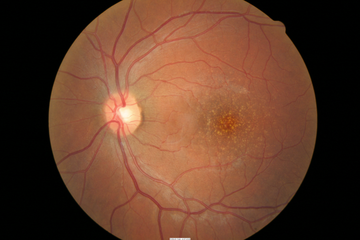 RetinalDrusen2