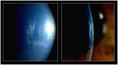 cornea up close